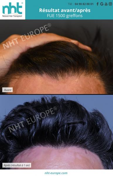 Résultat avant/ après