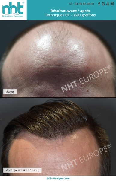 Résultats avant/après - zone frontale