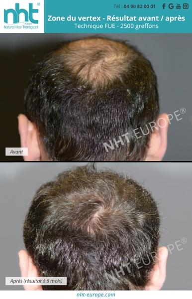 Résultats avant/après - zone du vertex