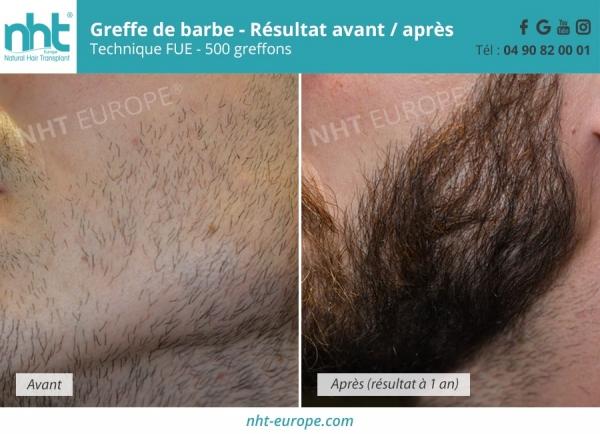 nht avant après barbe 70