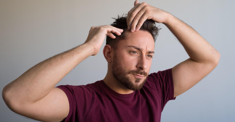 Greffe de cheveux pour hommes