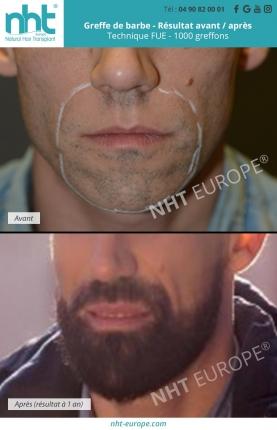Résultats barbe NHT