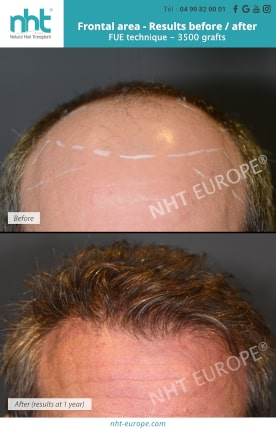 Result before after hair transplant FUE 3500 grafts