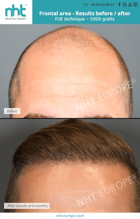 Result before after hair transplant FUE frontal area 5000 grafts