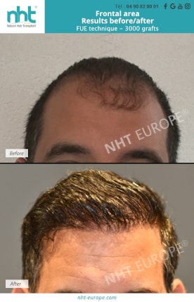 Result before after hair transplant FUE frontal area 3000 grafts