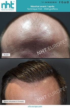 Résultat avant après greffe de cheveux FUE 3500 greffons