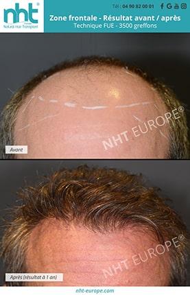 Résultat avant après greffe de cheveux FUE zone frontale 3500 greffons
