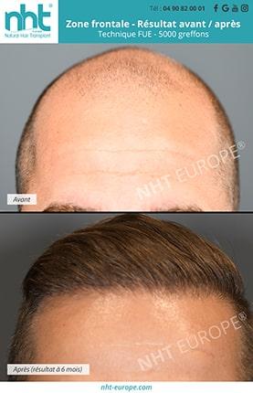 Résultat avant après greffe de cheveux FUE 5000 greffons.jpg